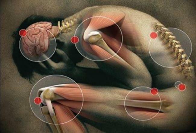 Drug Therapy for Rheumatoid Arthritis