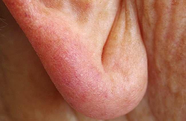 Wrinkled Skin in Front of Ear