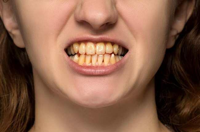 Overlapping Teeth - Make Yellow Teeth White