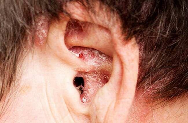 Dry Skin in Ear Canal Remedies